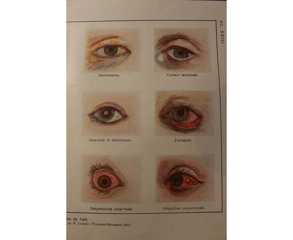 Planche médicales anatomie maladies de l'oeil
