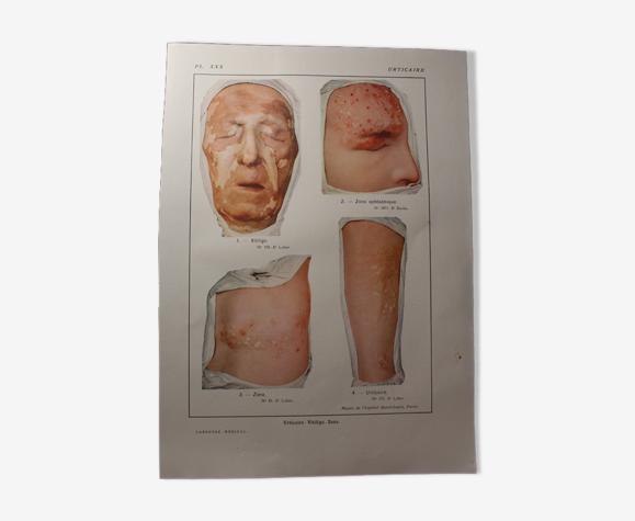 Planche médicale anatomie Urticaire