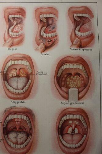 Planche médicale anatomique la bouche