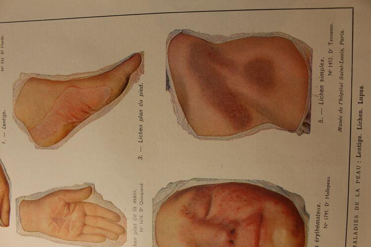 Planche médicale anatomie Lentigo