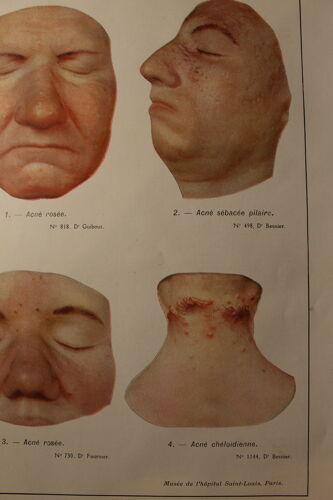 Planche médicale anatomique acné
