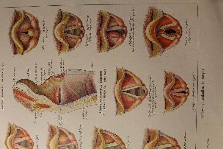 Planche médicale anatomie larynx