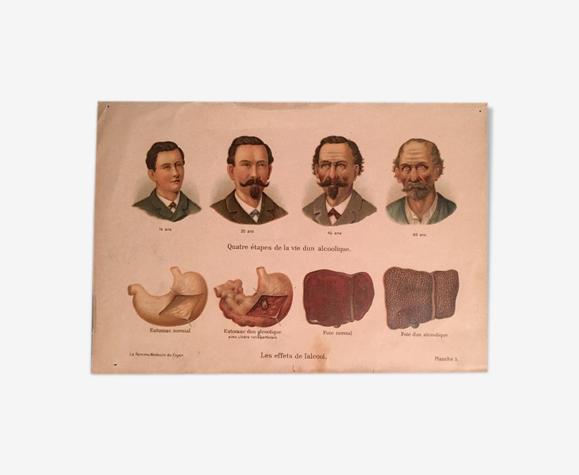 Planche anatomique ancienne