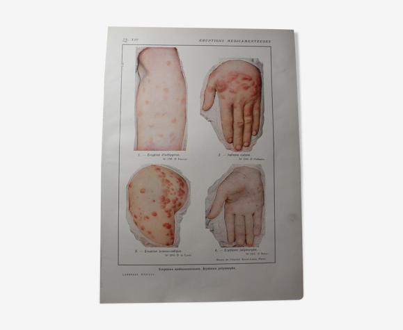 Planche médicale anatomie éruptions médicamenteuses