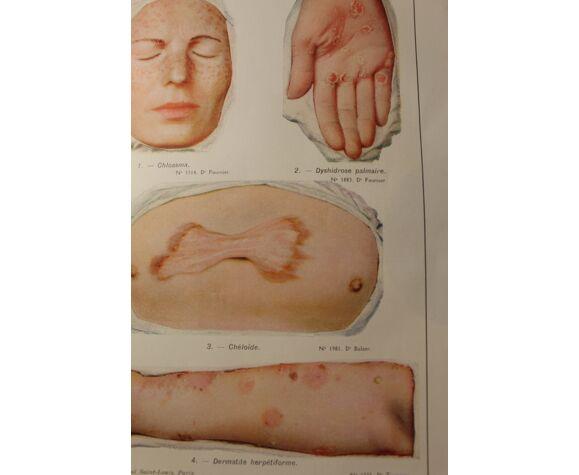 Planche médicale anatomie Chéloïde