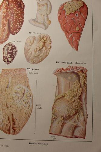 Planche médicale viandes malsaines