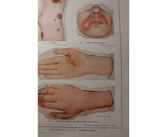 Planche médicale - anatomie - ecthyma