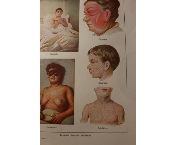 Planche medicale anatomie érysipèle