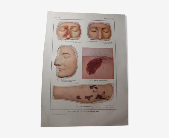 Planche médicale anatomie molluscum