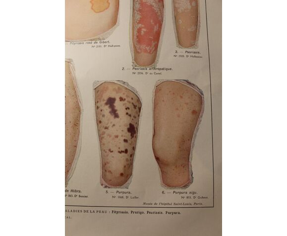 Planche médicale anatomie pityriasis
