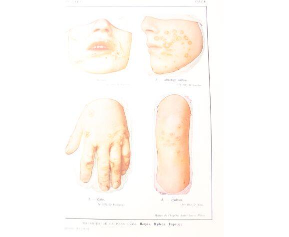 Planche médicale anatomie Gale